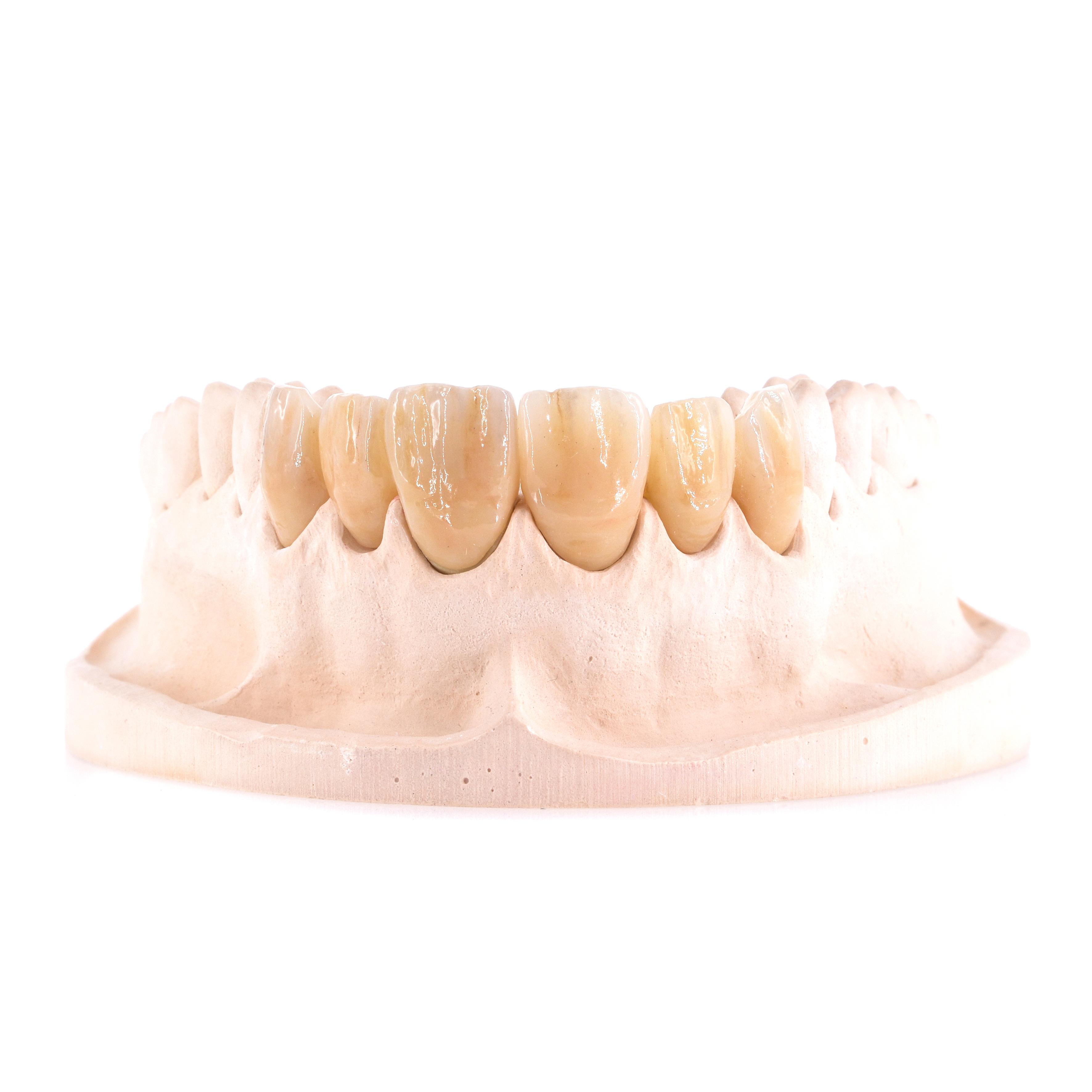 Zahnzentrum-Weiden-Herausnehmbarer-Zahnersatz