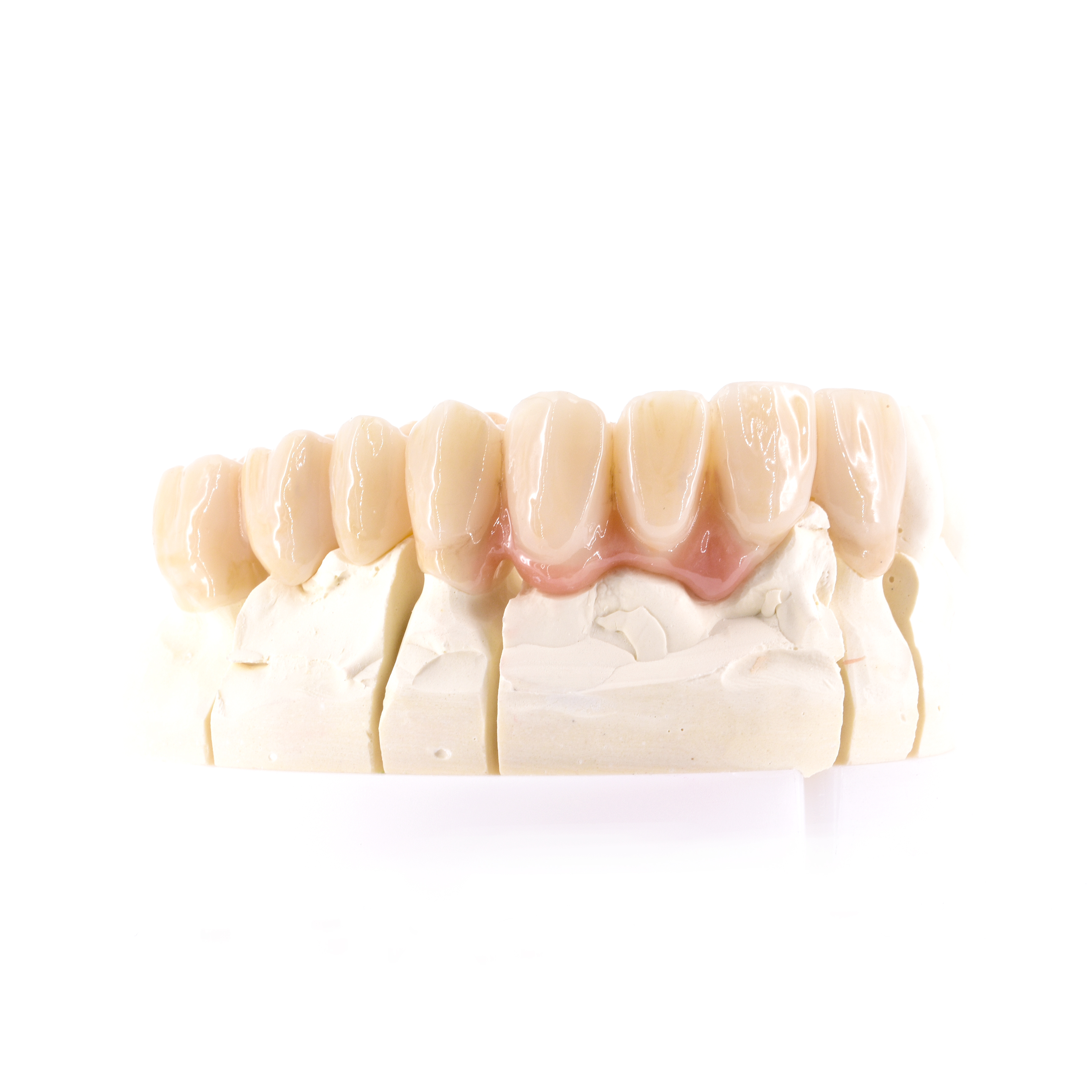 Zahnzentrum-weiden-Zahnersatz