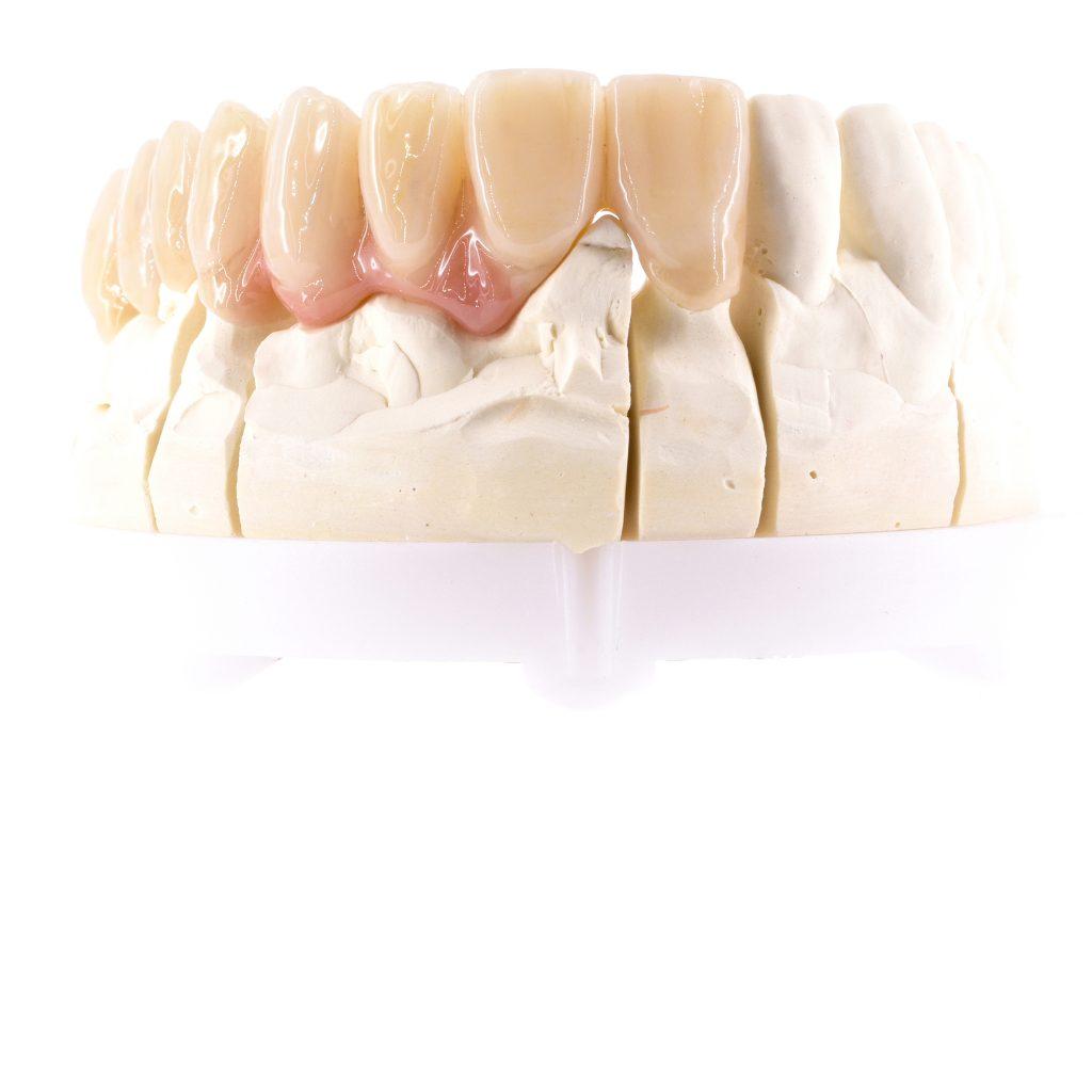 Zahnzentrum Weiden Zahnersatz
