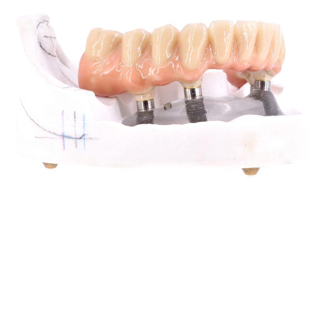 Zahnzentrum Weiden Implantologie